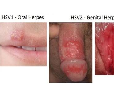 obat herpes aman untuk ibu hamil