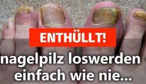 ENTHÜLLT! Fußnagelpilz loswerden einfach nie…
