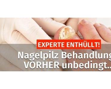 EXPERTE ENTHÜLLT! ▷ Nagelpilz Behandlung – VORHER unbedingt…