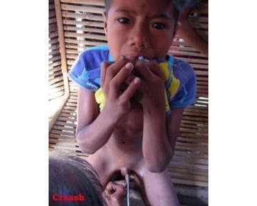 offener Brief von über 600 Medizinern gegen Beschneidung