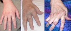 Autoimmunkrankheiten: Wenn das eigene Immunsystem krank macht