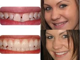 Perfekte Veneers für strahlend schöne Zähne