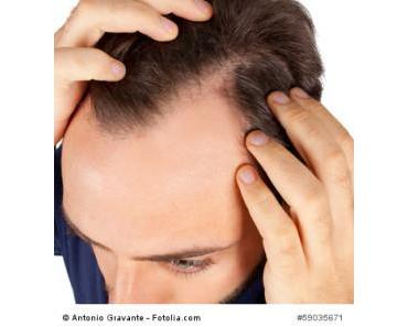 Umgang mit dem Haarausfall